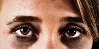 Eye Surgery in Dubai