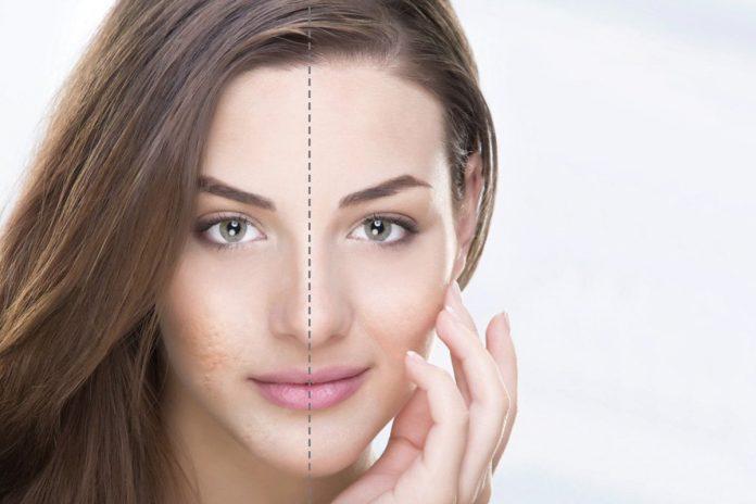 Traitement de cicatrice d'acnée