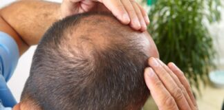 FUE hair transplant in India