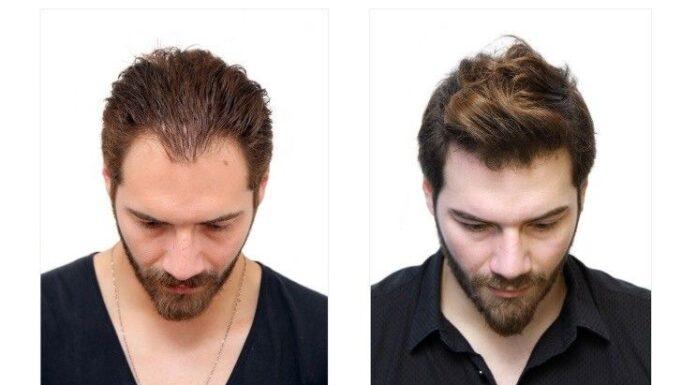 best hair replacement in delhi