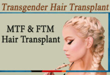 Transgender Hair Transplant- MTF and FTM Hair Transplant