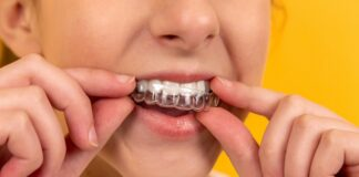 Woman with teeth retainer