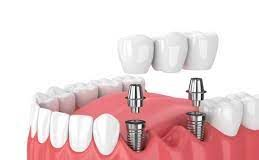 A Systematic View Of Dental Implants